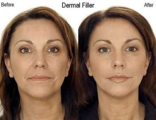 Ринопластика коррекция формы носа в Рязани